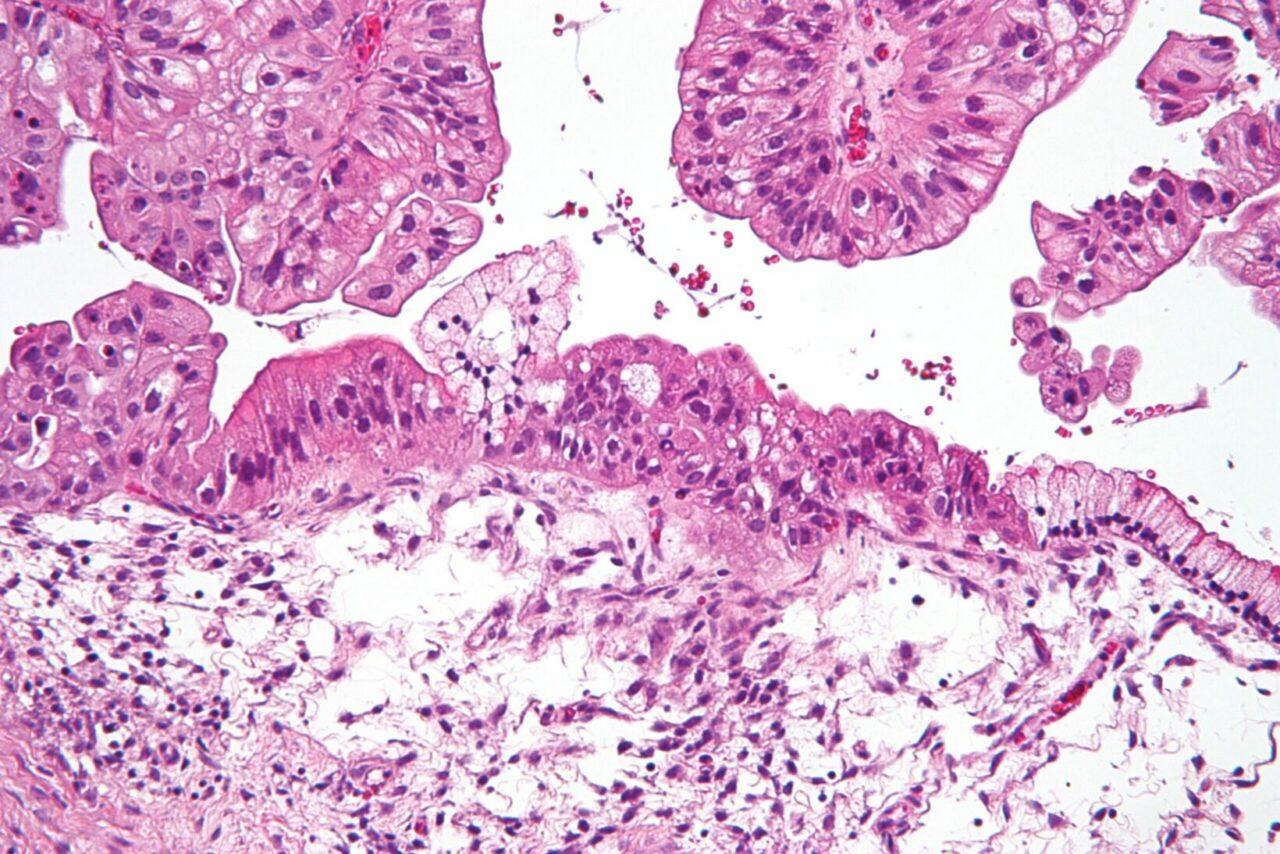 Mucinous_lmp_ovarian_tumour_intermed_mag
