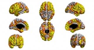 IMage: Molecular Psychiatry, S Karama, IJ Deary et al.