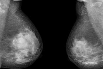 mamogram
