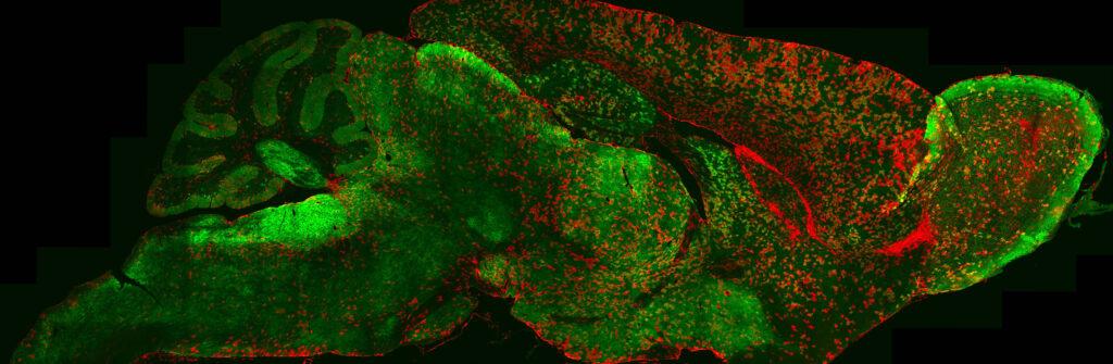 4-astrocytes_whole_brain_313907